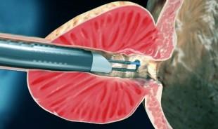 Erecția de 25 de ani dispare lungimea penisului dimensiuni normale